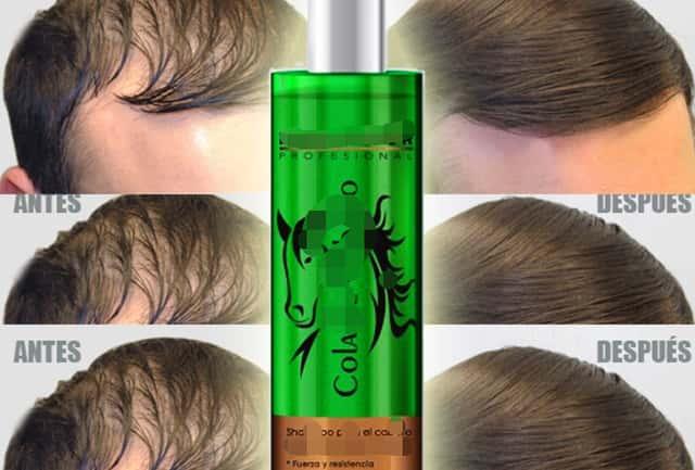 shampoo para calvície masculina